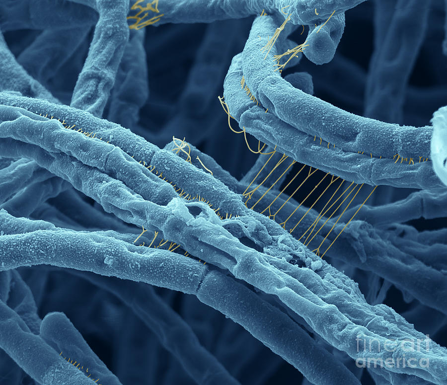 Abstract painting or colourised sem of anthrax bacteria